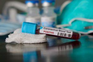 Новите случаи на коронавирус у нас за изминалото денонощие са 1681